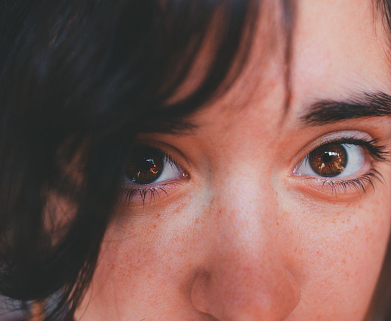 Afbeelding van Donkere kringen onder je ogen? Dit kun je eraan doen!
