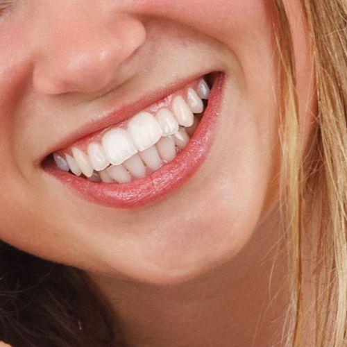 Afbeelding van 'Whitening tandpasta dure onzin'