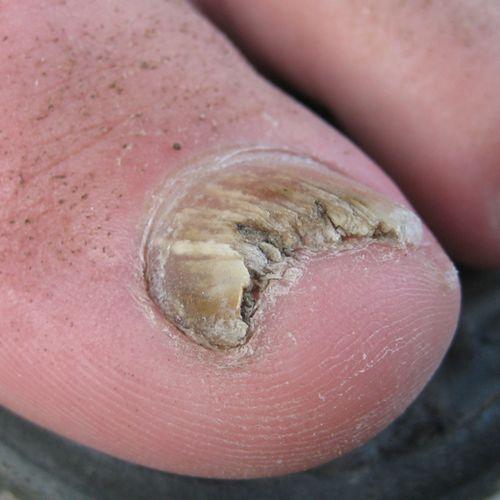 Afbeelding van Kalknagels en voetschimmel? Dit kun je doen!